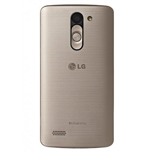 LG Bello Telefon Kılıfı Kendin Tasarla